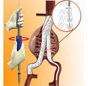 Hình ảnh nhóm sản phẩm Vật tư y tế sử dụng trong một số chuyên khoa